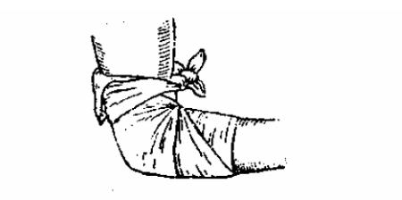 Косынка, завязанная в виде галстука на область локтя