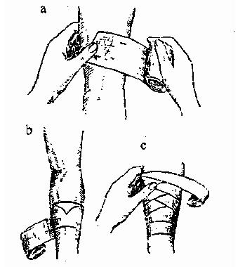 Наложение повязки