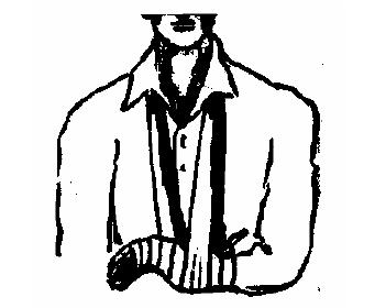 Перелом кости кисти
