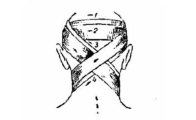 Повязка на область затылка