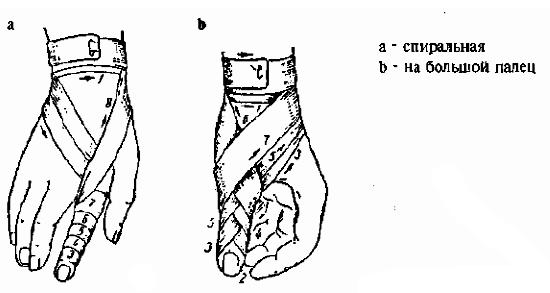 Повязка на пальцы