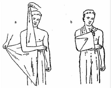 Рука, подвязанная на косынке