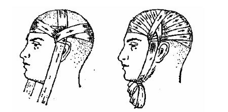 Шлемовидная повязка
