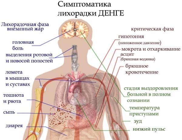 Симптомы лихорадки Денге