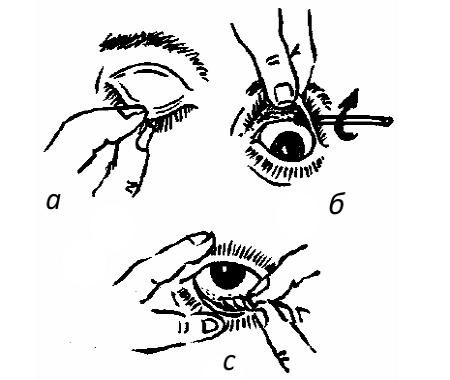 Удаление соринки из глаза