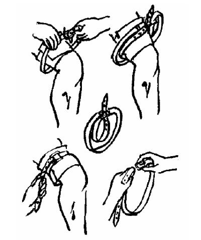 Наложение жгута