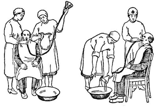 Техника промывания желудка